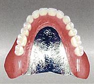 入れ歯(コバルト)