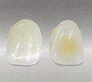 白い歯(セラミッククラウン)