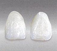 白い歯(オーダーメイドセラミック)